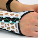 3D-печать поможет пациентам с артритом