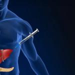 Открыт новый метод лечения диабета
