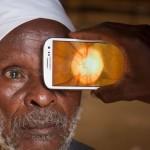 Модуль Peek Retina для смартфонов поможет выявить офтальмологические заболевания