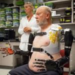 Американец получил киберпротезы вместо утраченных рук