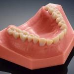 Зубные модели научились печатать на 3D-принтере