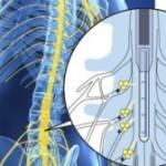 Созданы органические ионные транзисторы, способные блокировать болевые сигналы прежде, чем они дости...